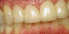 Misaligned tooth repair at Mark Givan, DDS in Fort Worth