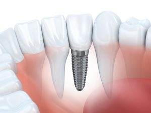 dental implants in fort worth