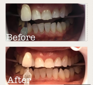 Before and after GLO Whitening.