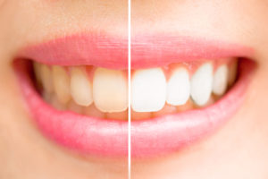 A smile before and after whitening